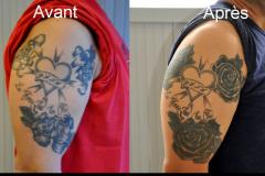 Tatouage de recouvrement